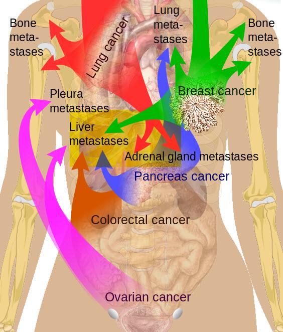General Surgery Liver Metastases