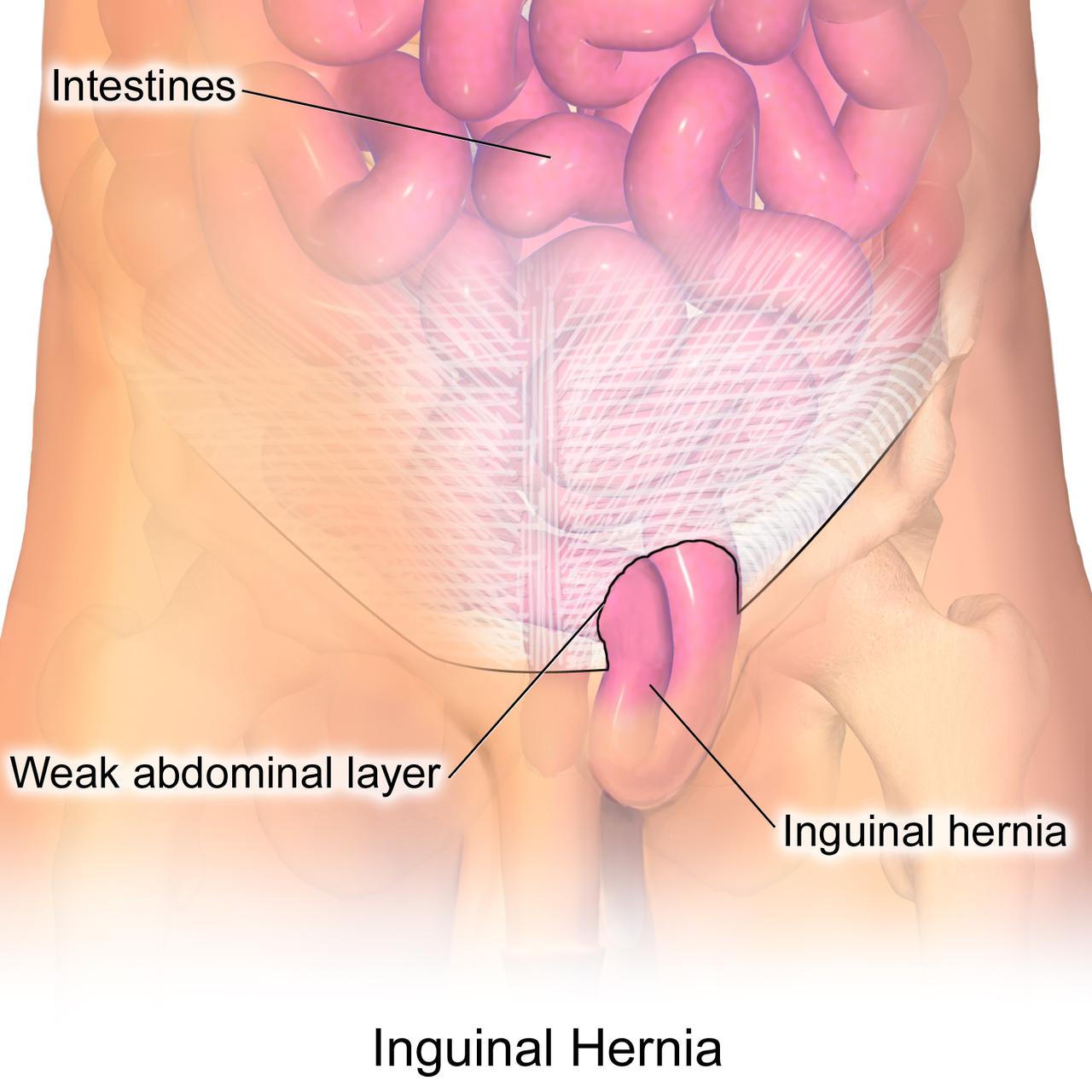 General Surgery - Inguinal Hernia