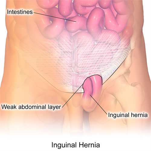 General Surgery Inguinal Hernia