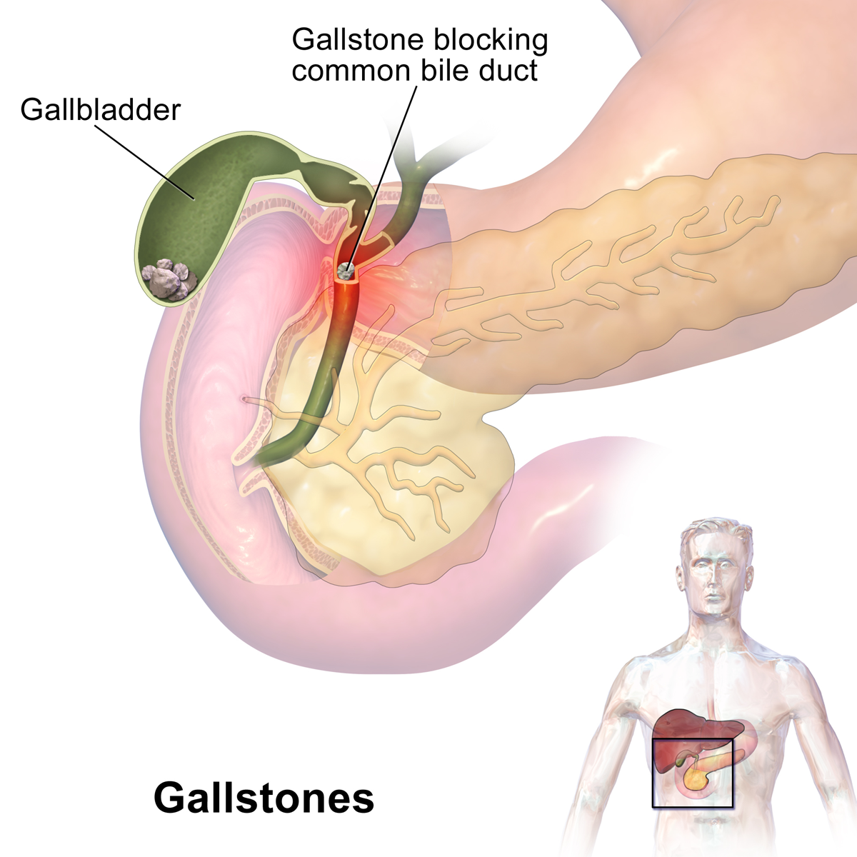 Gallstones Can Cause Sudden Pain In The Upper Right Abdomen This Called A Gallbladder Or Biliary Colic Occurs When Block Ducts