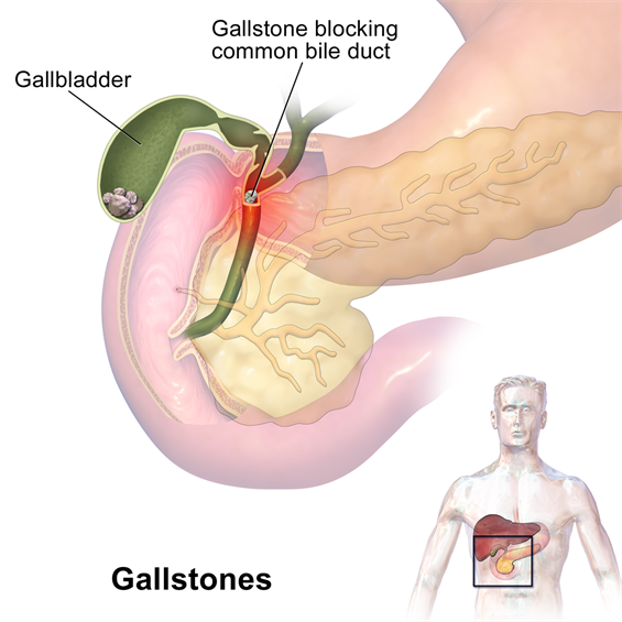 General Surgery Gallstones
